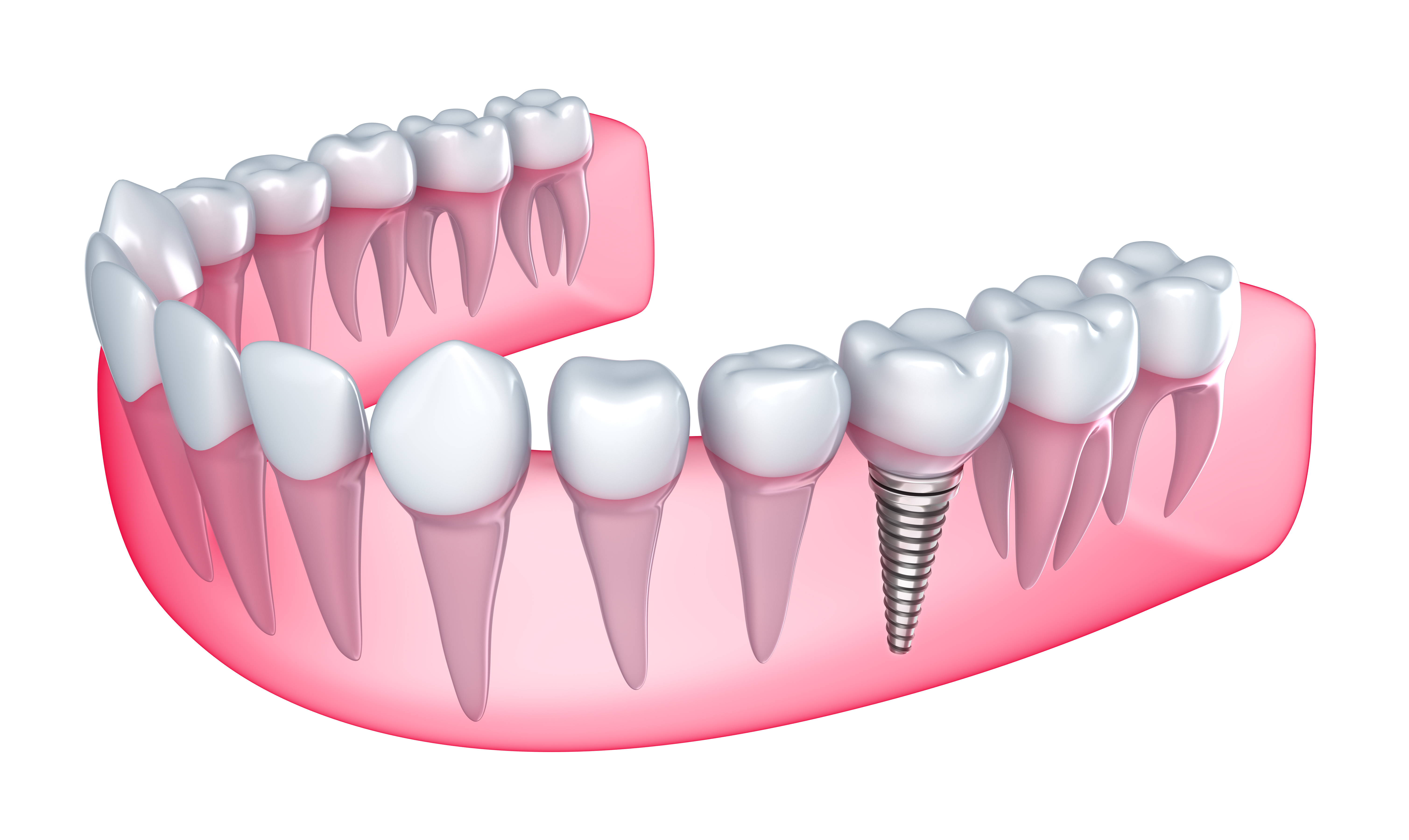 Where can I find Dental implants in Tamiami ?