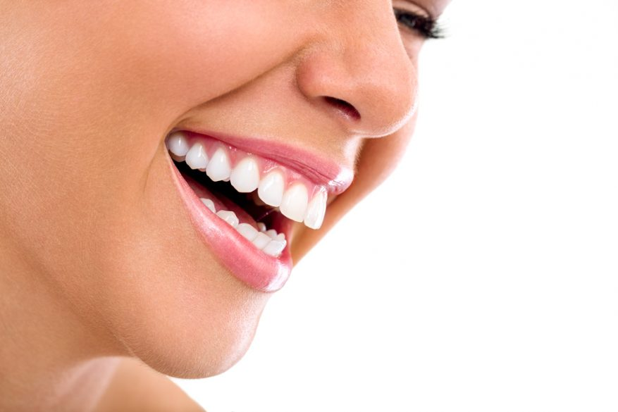 Where can I find Teeth Whitening in Tamiami ?