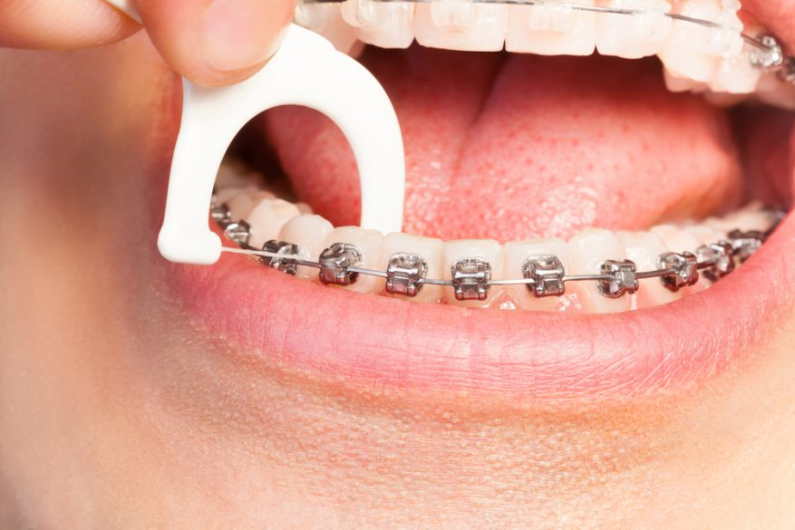 Who is the best dentist for orthodontics in Tamiami ?