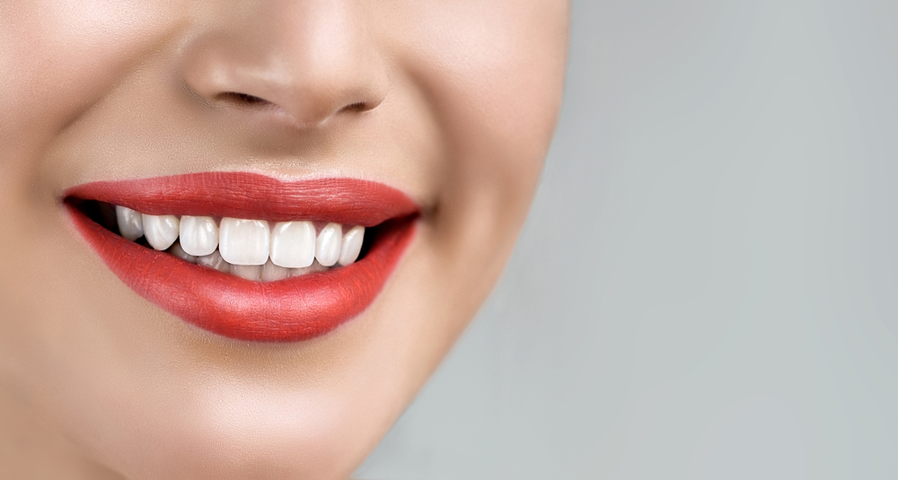 Where can I find Veneers in Tamiami ?