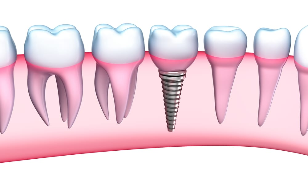 Who is the best dentist for a Dental Implant in Doral ?