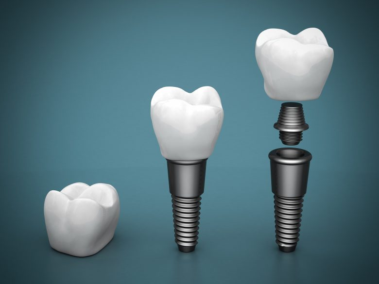 Where can I find a Dental Implant in Doral ?