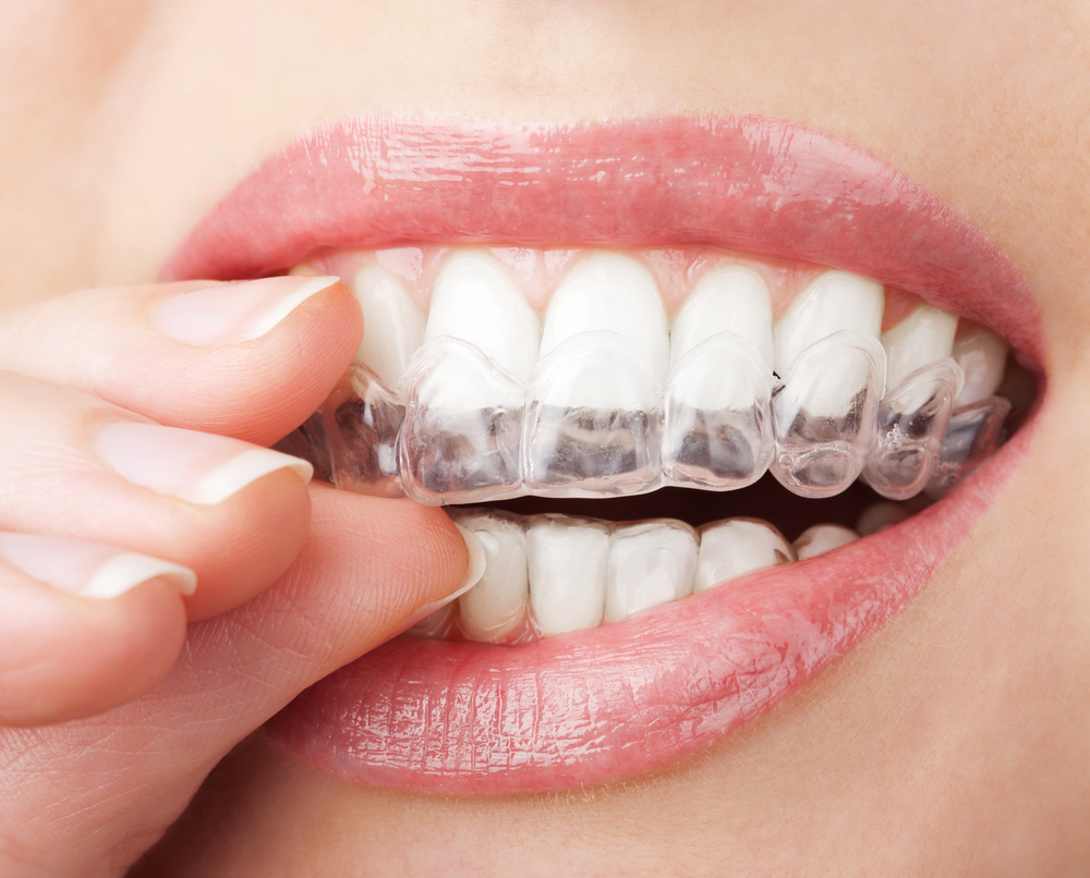 where is the invisalign in tamiami office located?