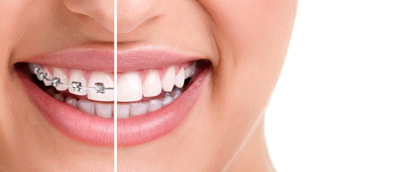 who is the best braces in tamiami for dental braces?