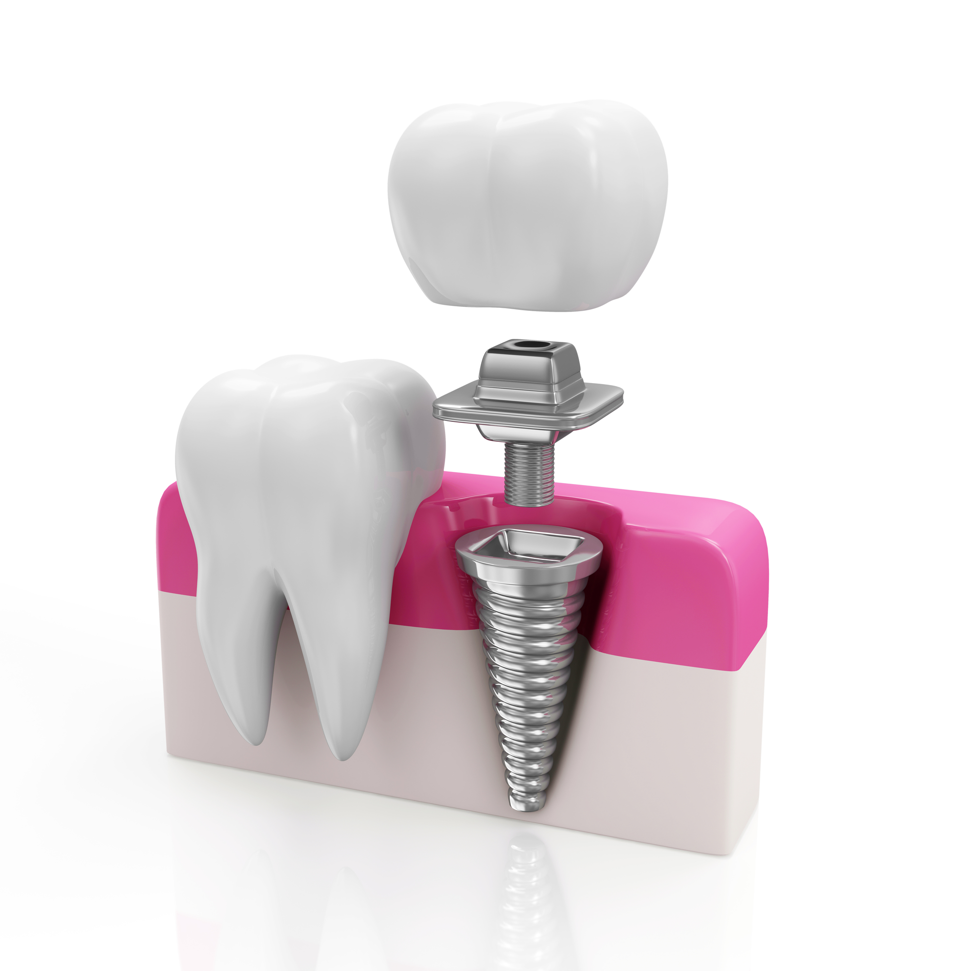 who is the best dental implants in doral for my mom?