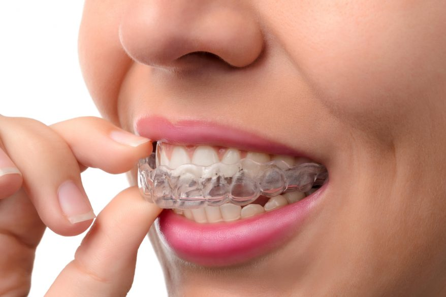 who offers the best Invisalign Tamiami?