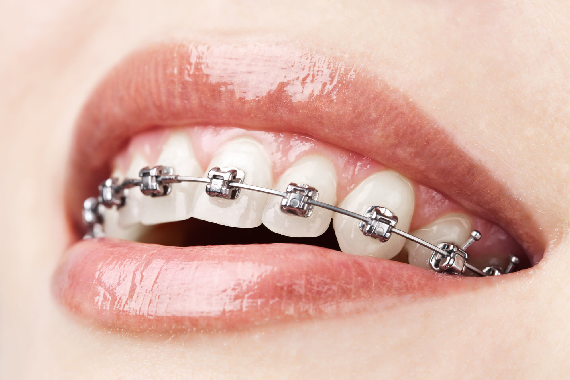 who offers the best braces in tamiami?