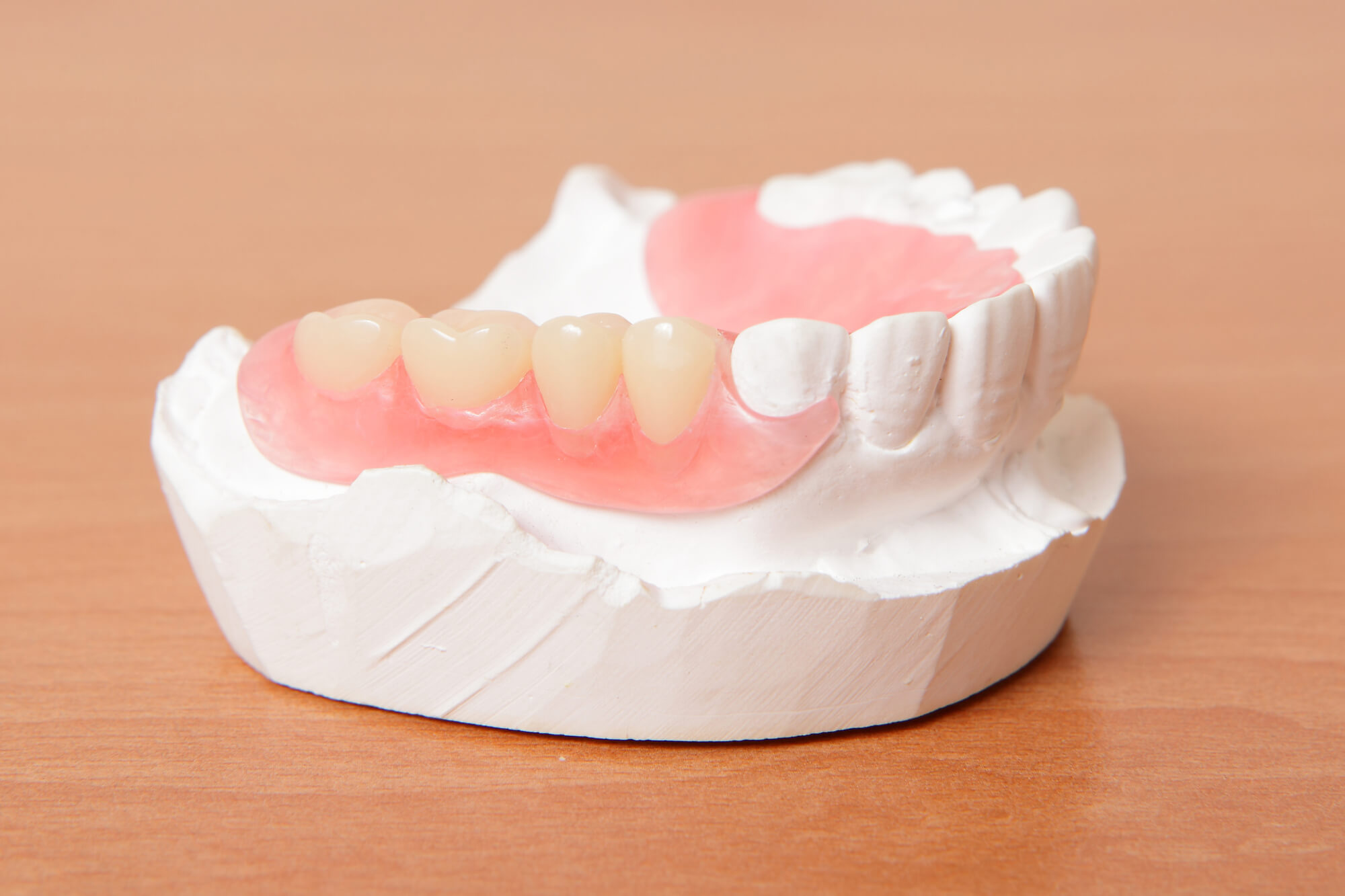 where are the best places to get dentures tamiami?