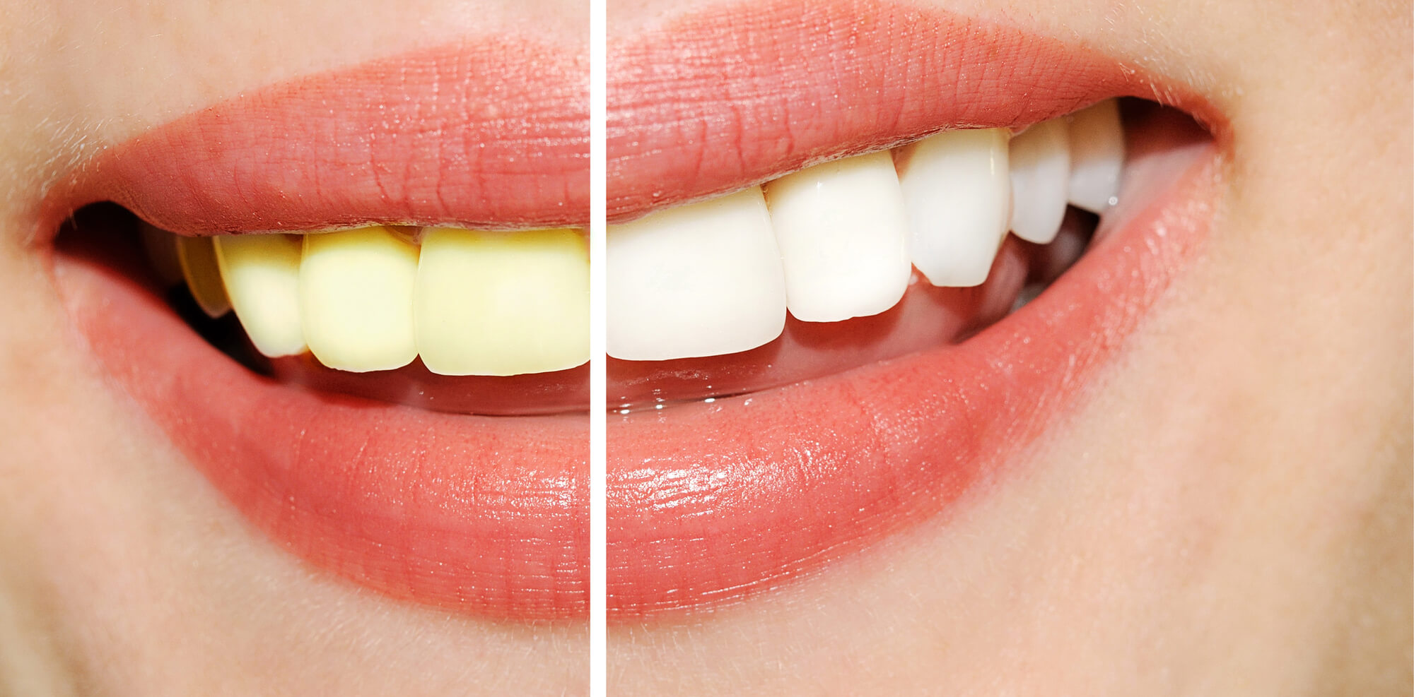 Teeth-Whitening-Tamiami-before-after