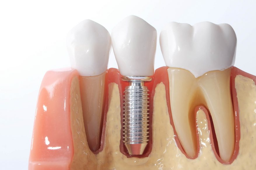 When do I need dental implants in Tamiami?