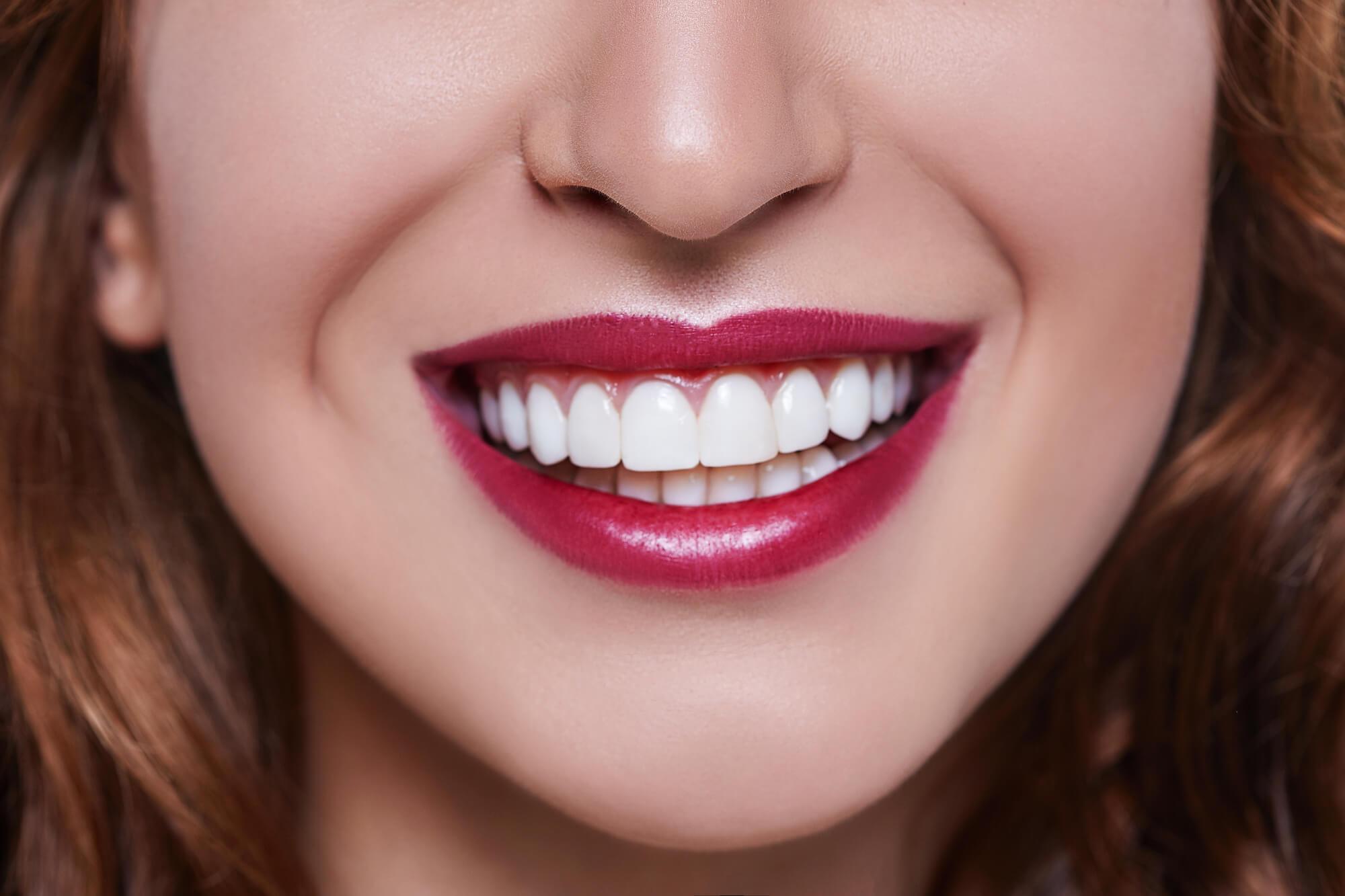 Teeth-Whitening-Tamiami-smile
