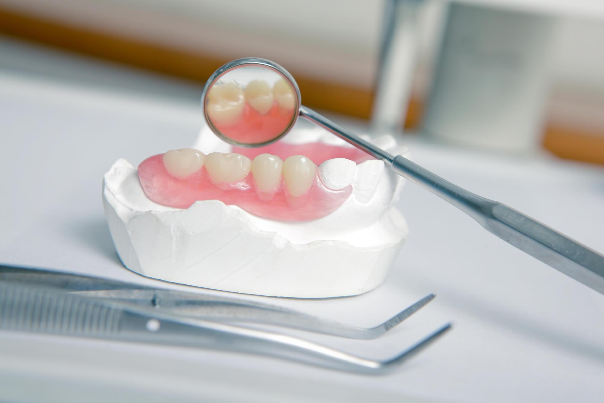 Dentures-Tamiami-model