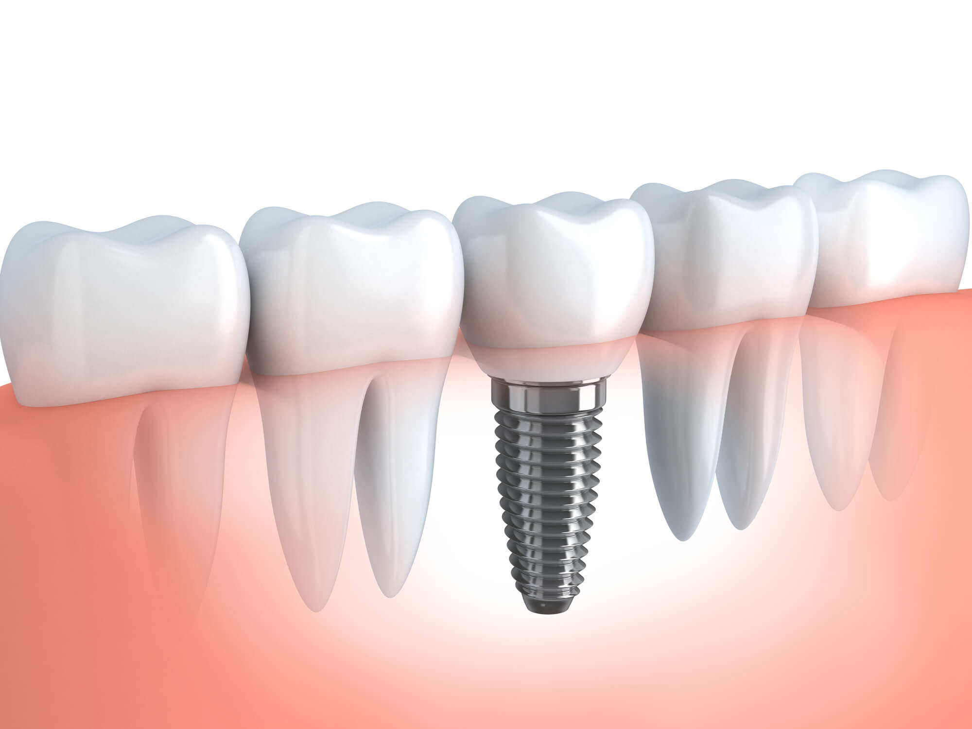where can I get the best dental implant in doral?