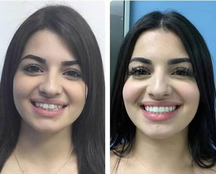 Invisalign Cropped 1