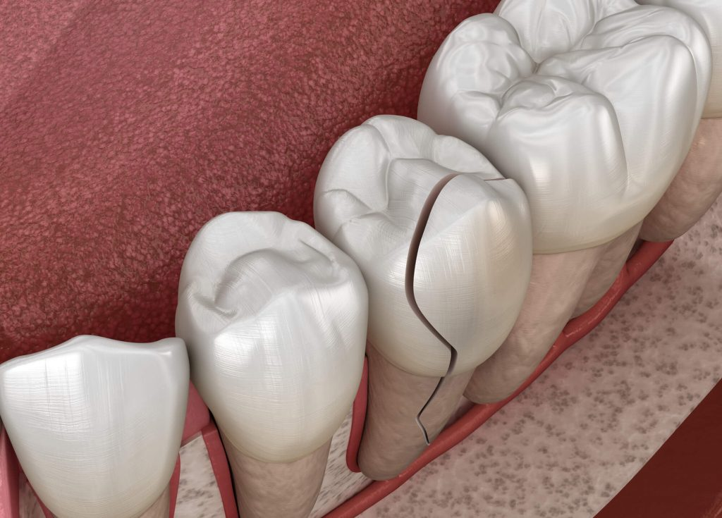 Cracked tooth for Tamiami Dentist