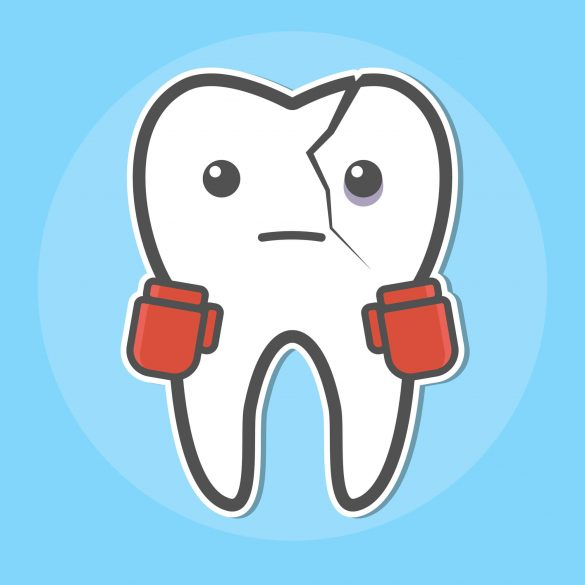 Dentist in Tamiami cracked tooth cartoon