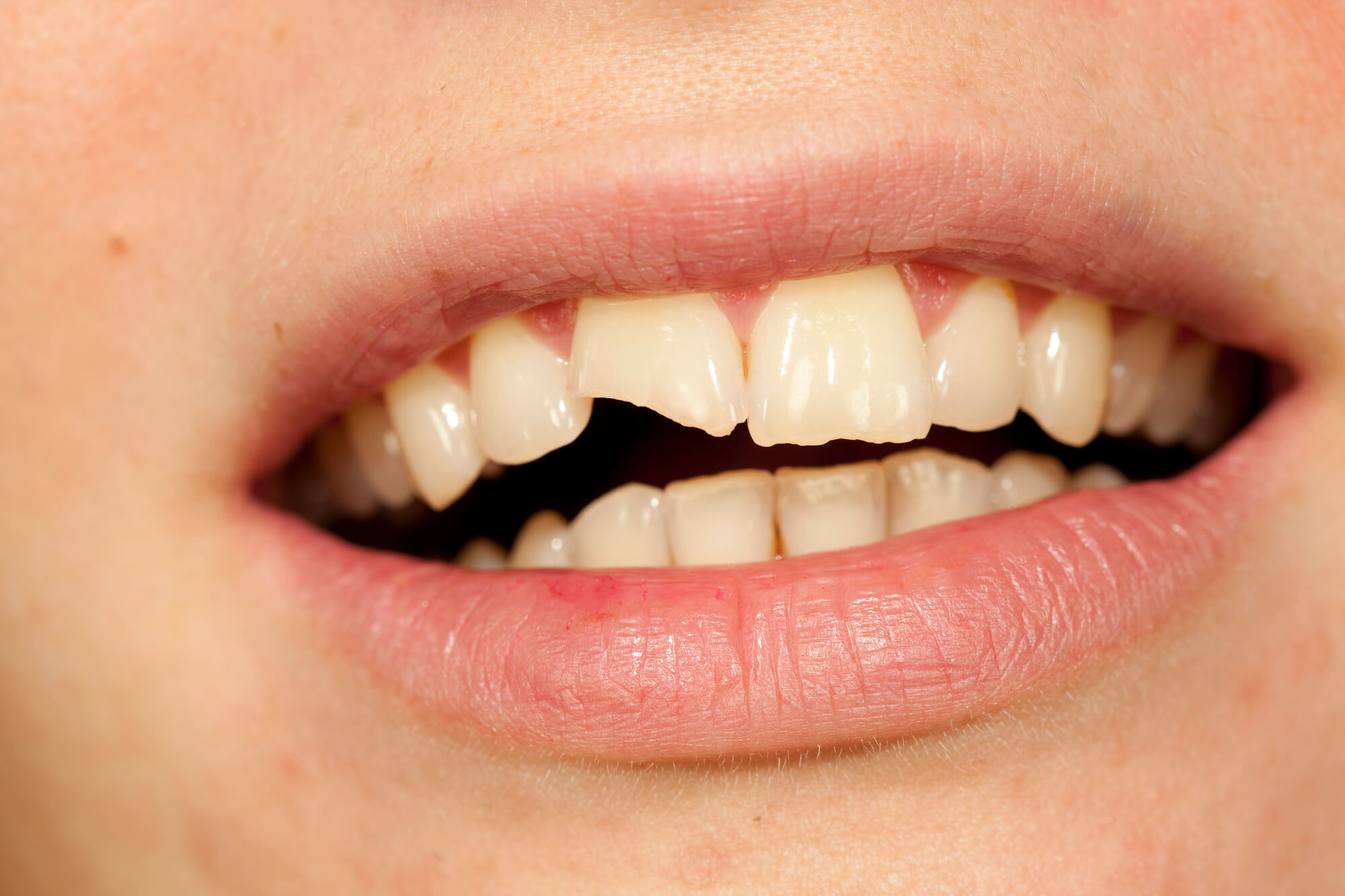 chipped tooth with Dentist in Tamiami