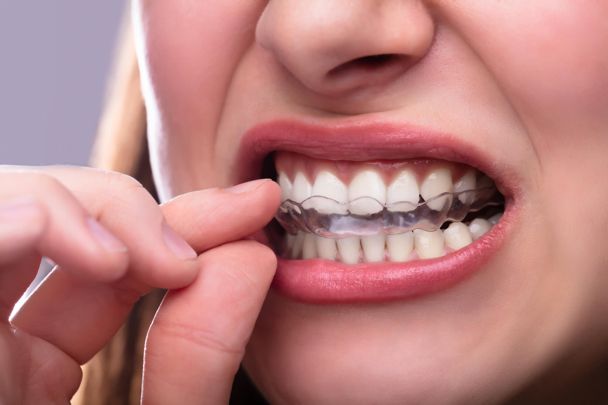 learning about invisalign in tamiami