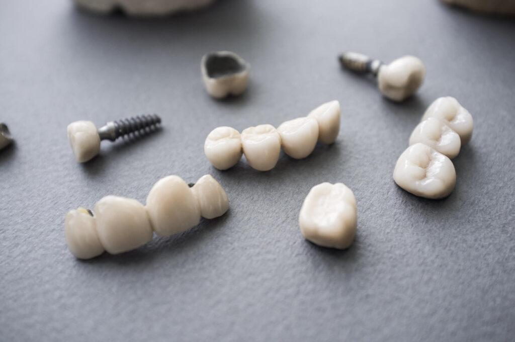 choosing dental implants in Doral
