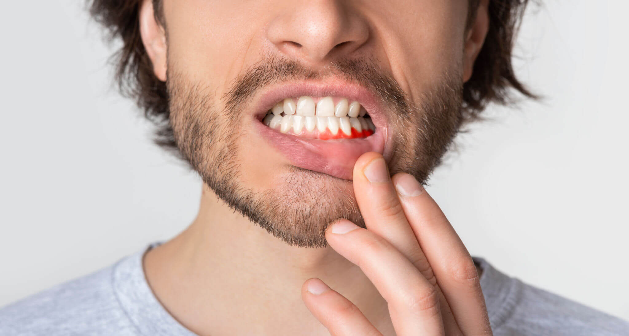 Man Suffering From Aching Gums Periodontics in Miami