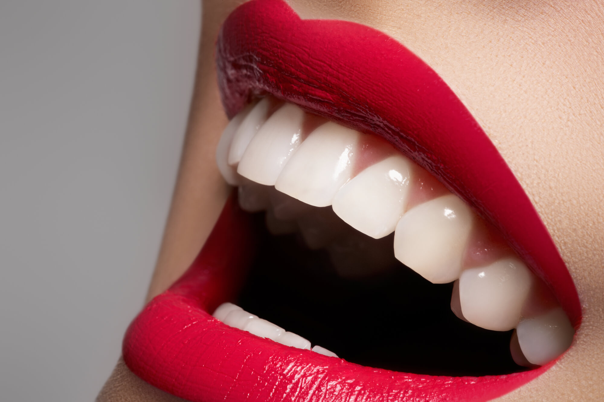 woman smiling with a beautiful teeth after visiting the best dentist in Miami